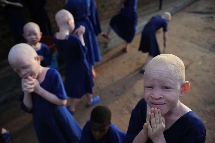 albinosi_b