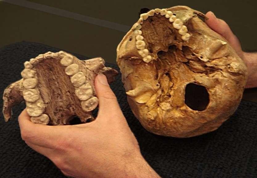 Как в древности лечили зубы?