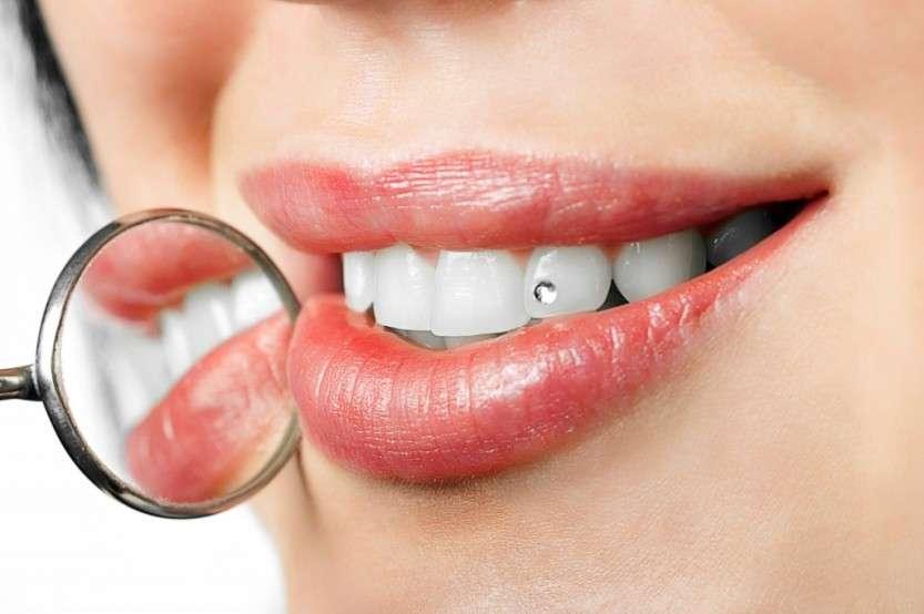 Как раньше украшали и заменяли зубы?